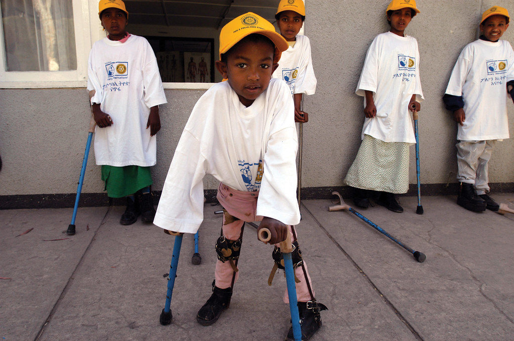 Image of child with paralysis from polio