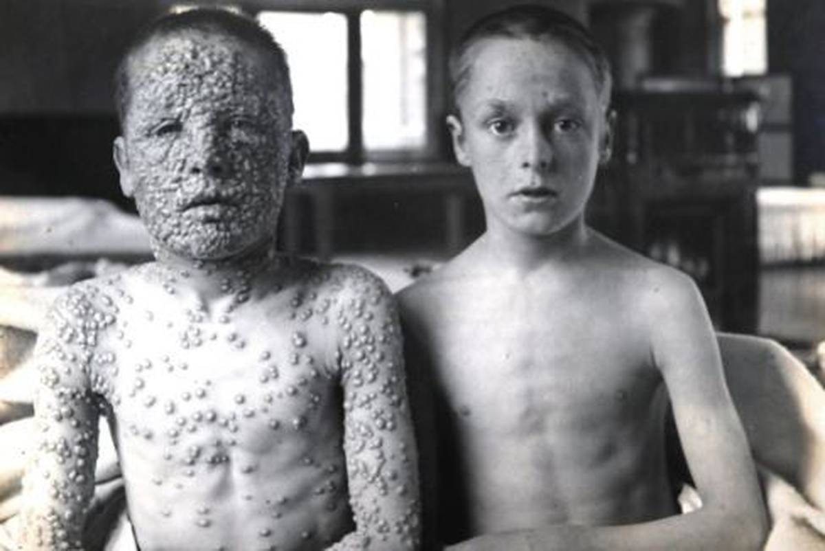 Before and after vaccines